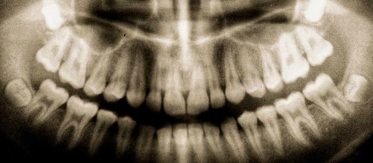 Xray of teeth