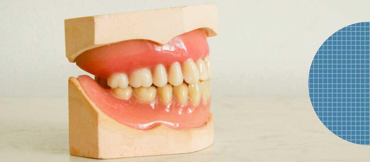 Set of false teeth